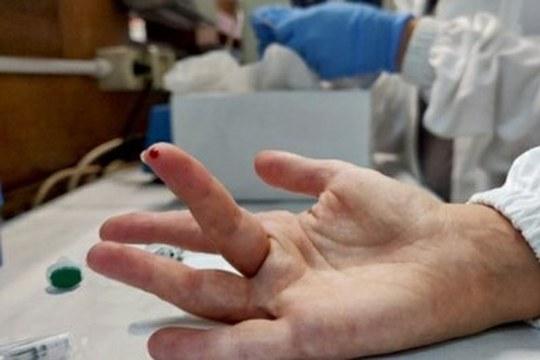 Diagnosi e terapia dell'infezione da SARS-CoV-2: un micro-campione può fare la differenza